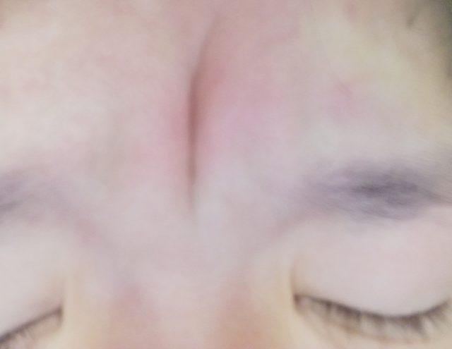 眉間のシワ取りテープおすすめ!皮膚科に行けば本当に治るのか調べてみた
